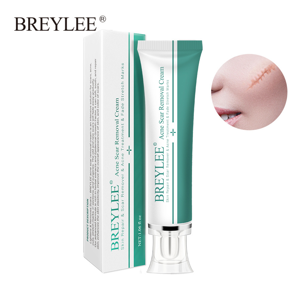 Breylee Scar Cream Desalination Repair Scars To Remove Acne Marks To Stretch Marks Cross-border Export For Bl-13