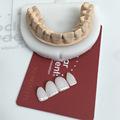 牙齿牙贴 牙齿全瓷贴面美牙贴炫白牙贴去黄去污贴 牙齿套装