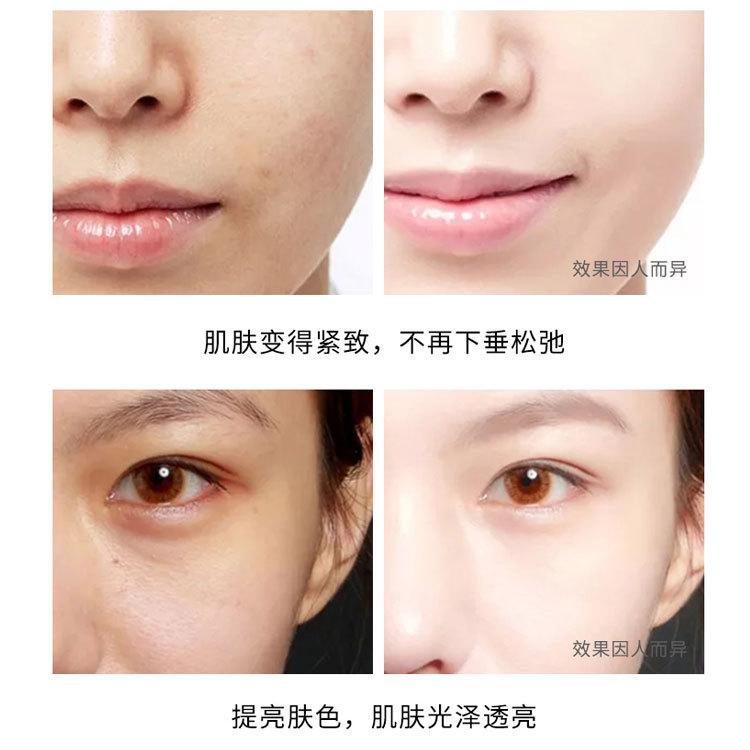 养护套补水紧致提亮 肤色护理角质层薄面部护理美容院植萃安肌